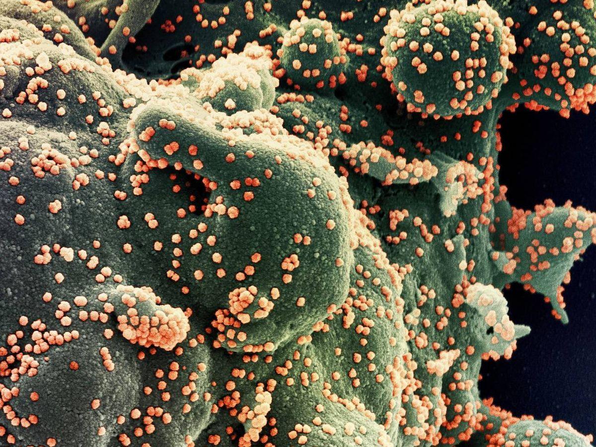 Foto: Coronavirus SARS-CoV-2 (en naranja) invadiendo una célula (en verde). (Foto: NIAID-NIH)