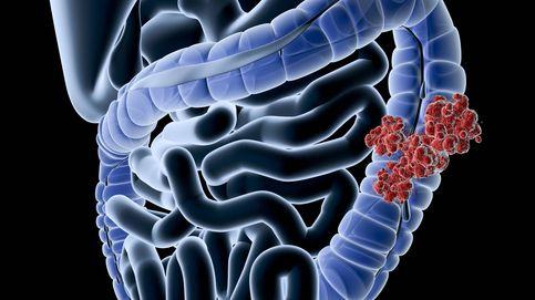 Qué le ha pasado a Antonio Resines: cómo saber si tienes cáncer de colon