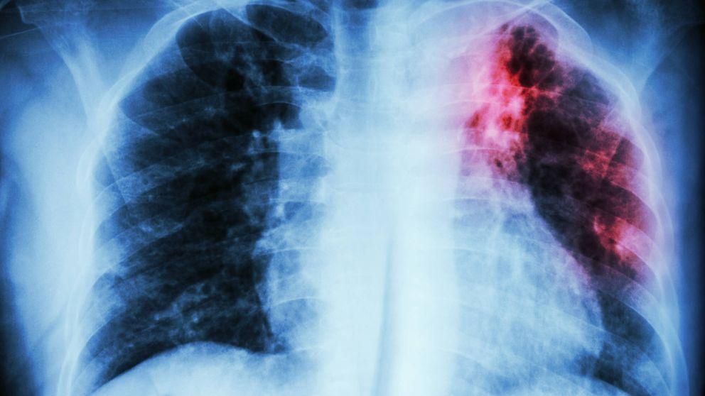 Esta es la enfermedad que se confunde con el asma y que es peligrosa
