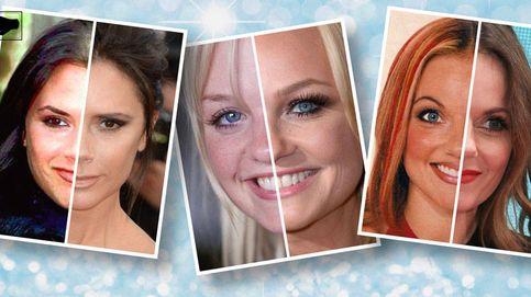 Rinoplastias, bótox y ácido hialurónico: así son las Spice Girls 20 años (y quirófanos) después