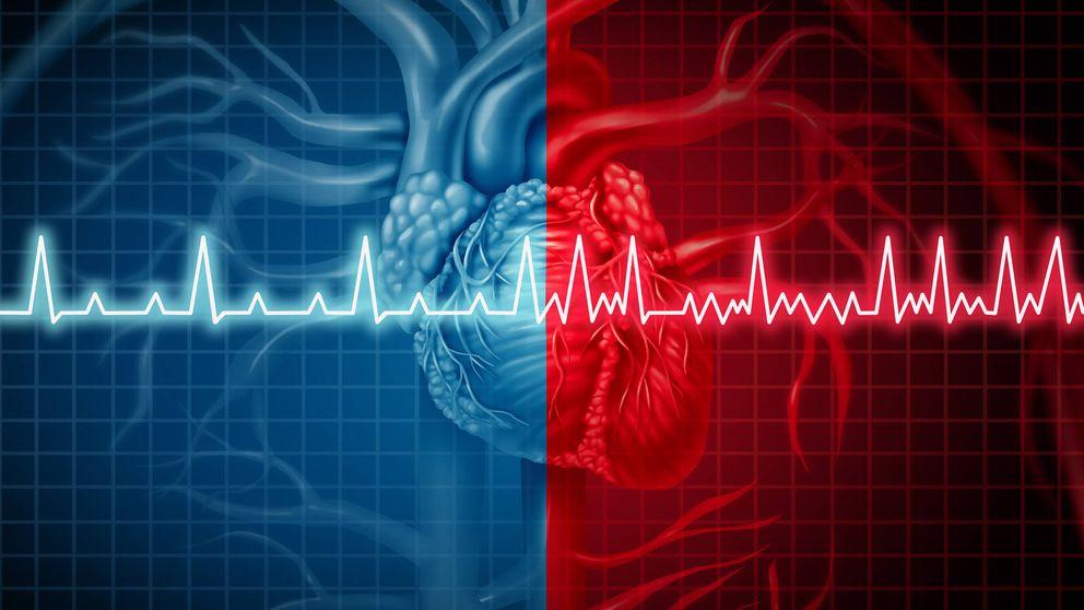 Las dietas bajas en hidratos pueden provocar arritmias cardíacas