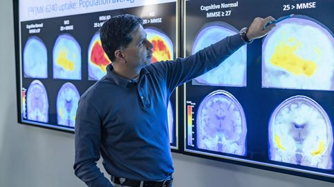 Polémica por el nuevo fármaco aprobado contra el alzhéimer. ¿De verdad es efectivo?