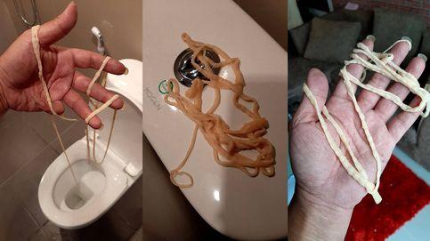 Un hombre va al baño y expulsa un gusano de más de 10 metros de longitud