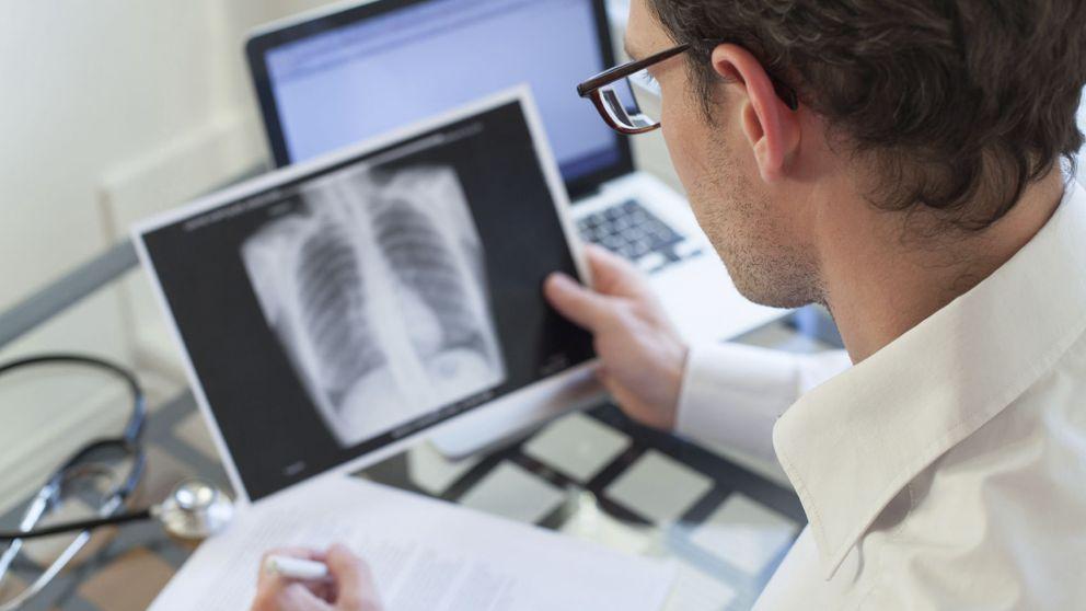 No es mala suerte: el 90% del cáncer está causado por factores evitables