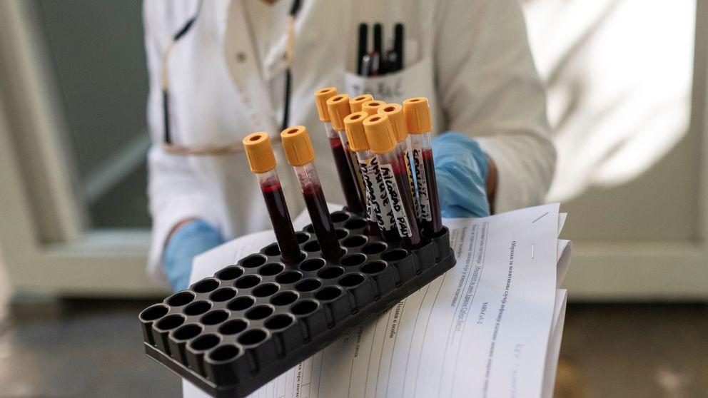 El CSIC desarrolla un test de anticuerpos del coronavirus con una fiabilidad del 98%