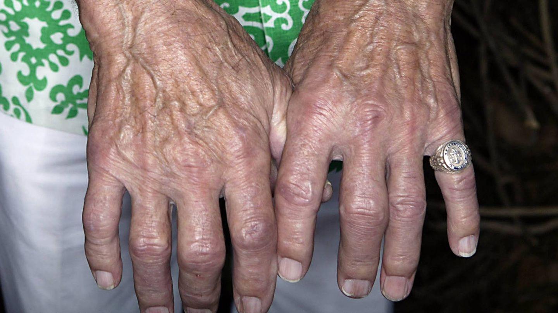 Las manos de una superviviente de Pearl Harbour, ejemplo de manos estriadas.  (Getty)