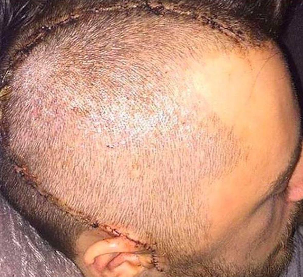 Foto: Impactante imagen del cráneo de Ryan Mason. (@ryan8mason)