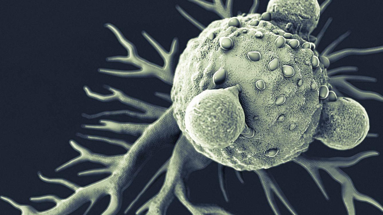 Foto: Una célula cancerosa con linfocitos T. (iStock)