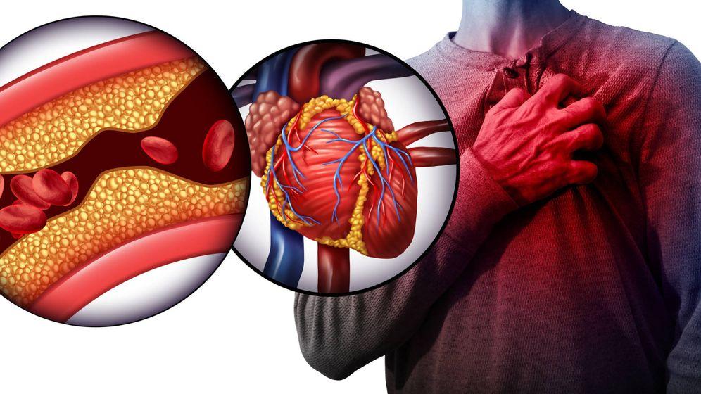 Foto: Representación de una arteria obstruida con colesterol. (iStock)