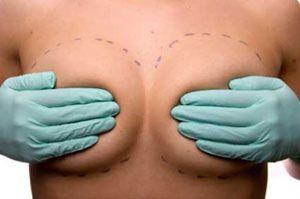 Mitos y verdades de la mamoplastia según Planas