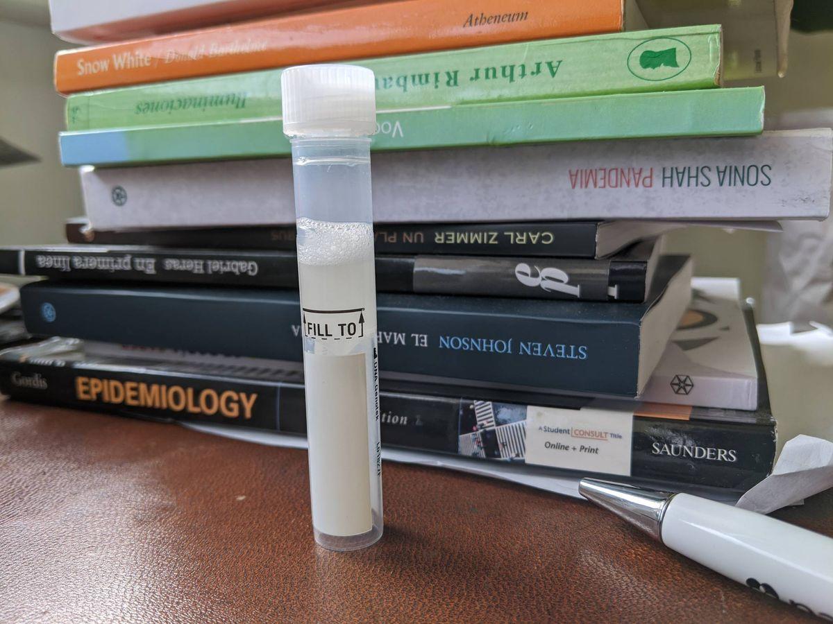Foto: El tubo con la muestra de saliva lista para enviar. (A.V)
