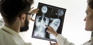 Post de La causa que puede acelerar seis veces la propagación del cáncer en el cuerpo