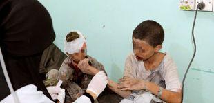 Post de Atacan un autobús escolar en Yemen: