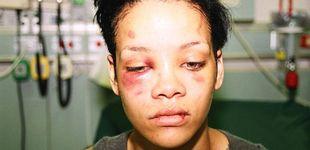 Post de Snapchat pide perdón tras reírse de Rihanna y la paliza que su ex le propinó