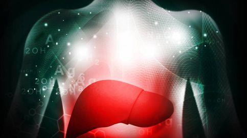 Si tienes el hígado graso, eres mucho más vulnerable al covid-19