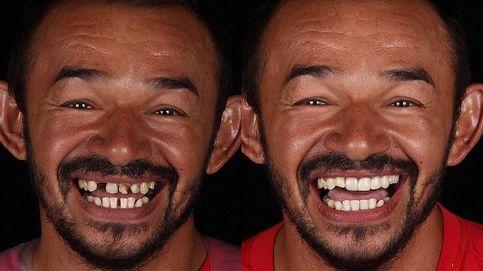 Un dentista solidario viaja por el mundo trabajando gratis por una sonrisa