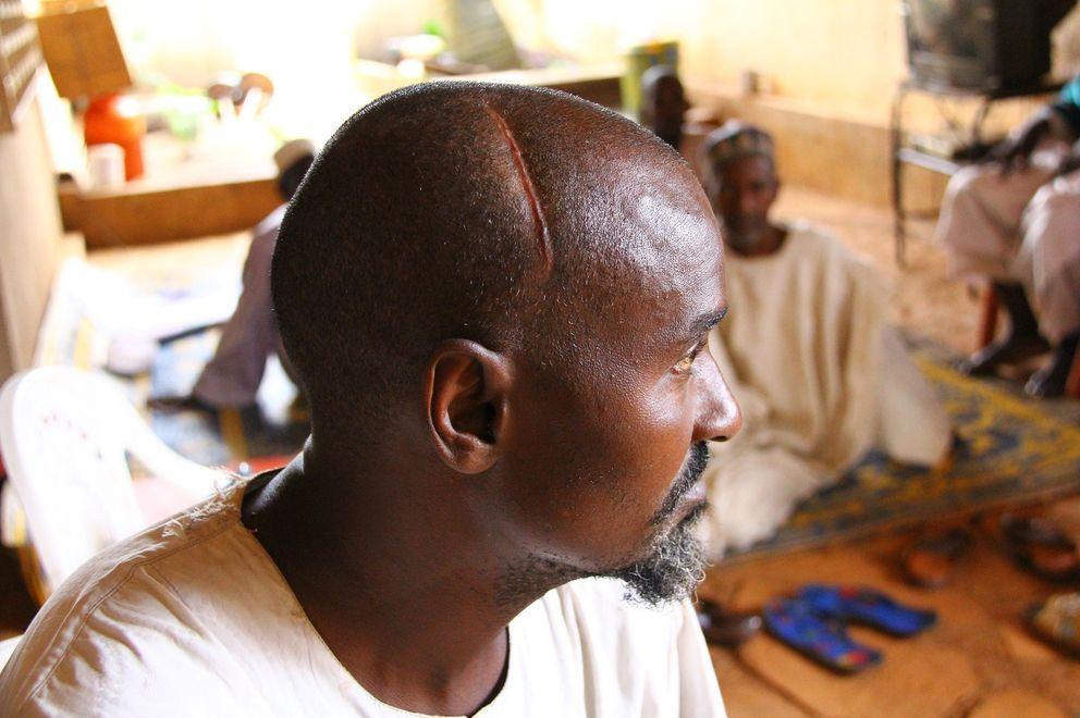 Said Bouba, superviviente de una ataque con machete (T.D.)