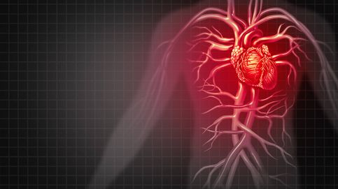 Las causas ocultas que pueden provocar que te dé un infarto