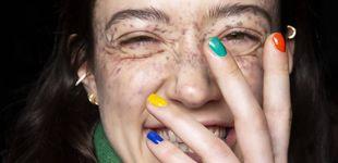 Post de Gestos que provocan manchas en tu piel (que no sabías) y remedios para eliminarlas