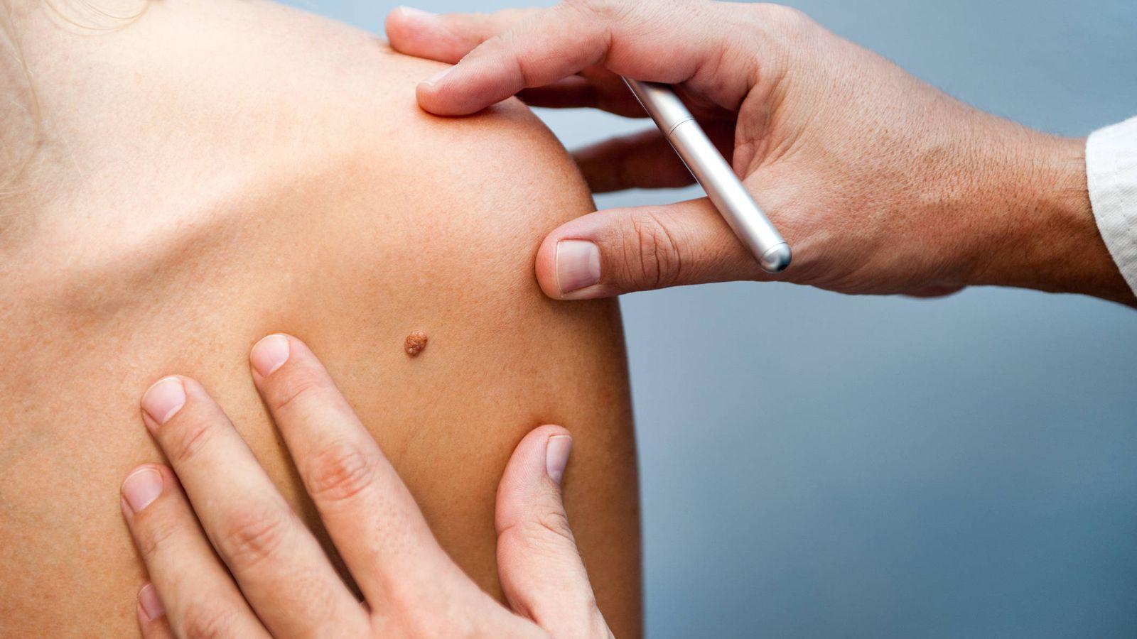 Salud: Síntomas del melanoma que no deberías ignorar (y lo haces a menudo)
