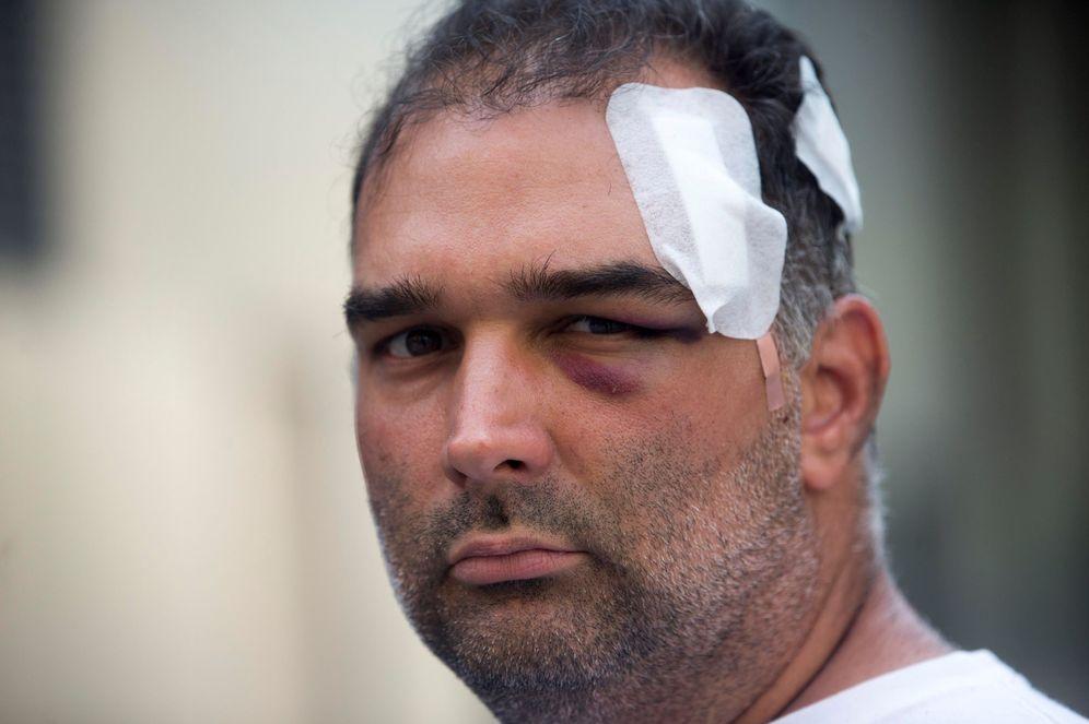 Foto: El turista José Bravo, que fue agredido por un grupo de manteros en la plaza Cataluña de Barcelona. (EFE)