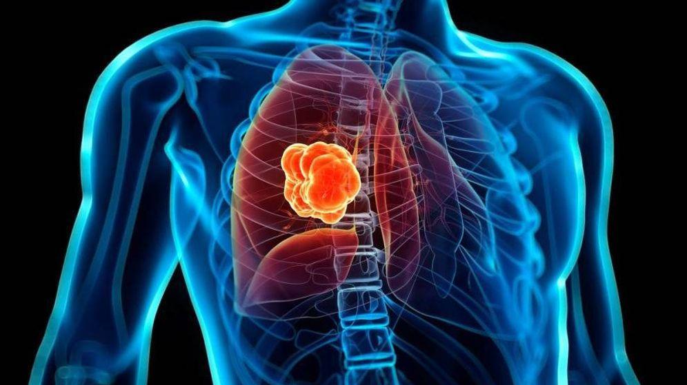 Foto: Cáncer de pulmón. (EC)