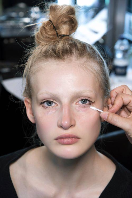 Foto: La acupuntura también es para el rostro. (Foto: Imaxtree)