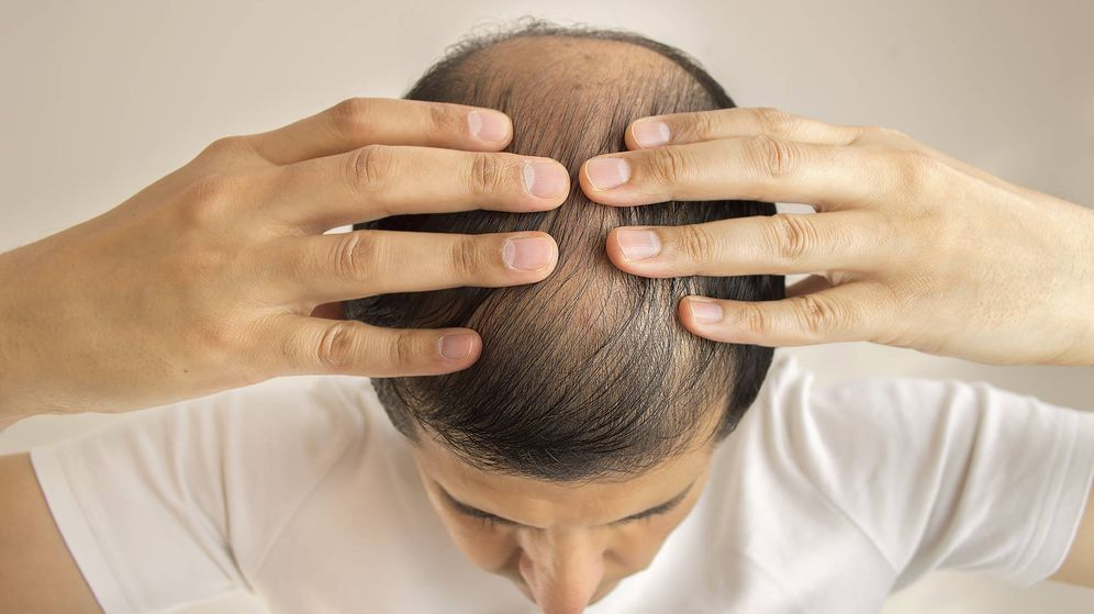 Foto: La alopecia afecta más a las personas que trabajan más de 52 horas a la semana