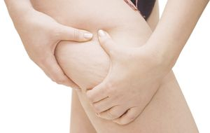Todos conocemos sus efectos, pero ¿sabes qué es realmente la celulitis?