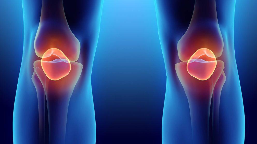 Colágeno, hialurónico y condroitina…los tres jinetes de la salud articular