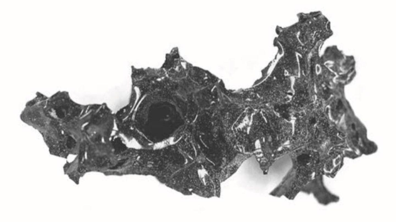 Un fragmento de vidrio encontrado en el cráneo (Foto: The New England Journal of Medicine)