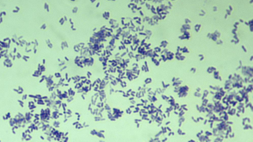 Foto: Difteria, vista al microscopio (Corbis)