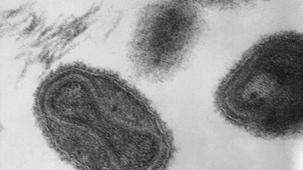 Foto: Es el virus de la viruela