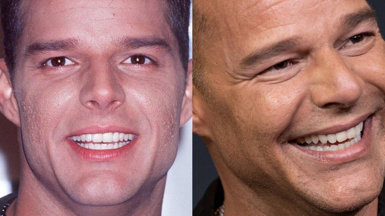 Detalle de la piel de Ricky Martin en 1999 y 2021. (Getty)