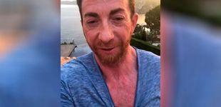 Post de El impactante vídeo de Pablo Motos tras abrasarse al sol en vacaciones