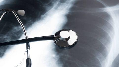 6 señales silenciosas que revelan que tus pulmones funcionan mal