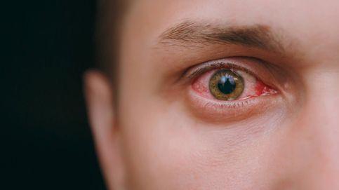 Lo que saben de ti (y de tu salud) los demás solo con mirarte a los ojos