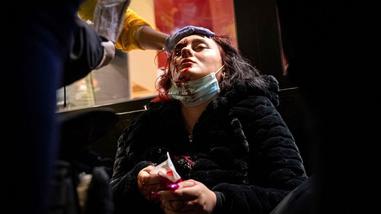La joven que perdió un ojo en los disturbios pro-Hasél se querella contra dos mossos