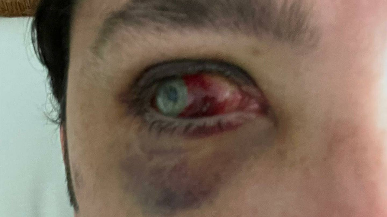 Estado actual del ojo derecho de Francisco Nicolás. (EC)