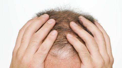 ¿Se te ha caído el pelo más de lo normal? Los efectos de 2020 en la salud de tu cabello