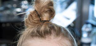 Post de Lifting con acupuntura: lo último para borrar las arrugas y lucir rostro luminoso