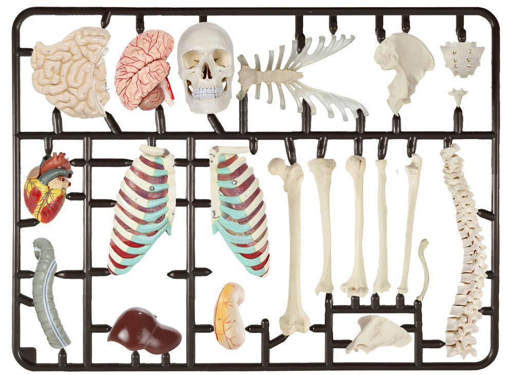 Foto: El mercado de los implantes. Raúl Arias.