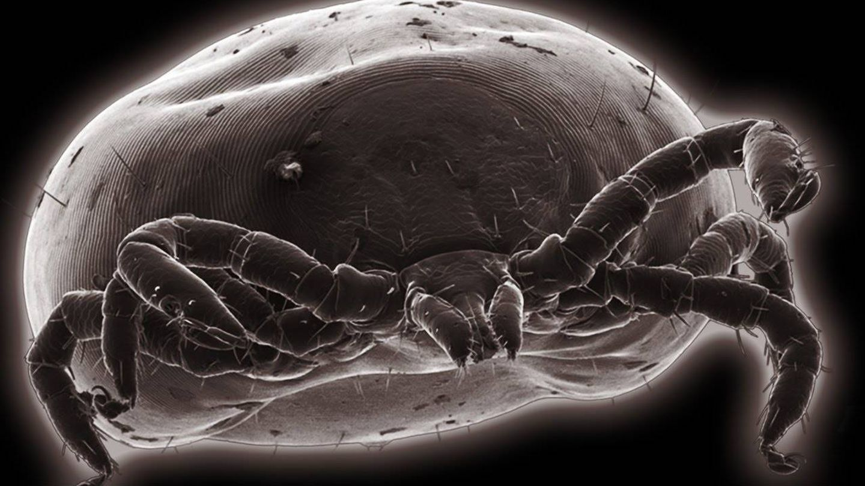 Garrapata vista al microscopio electrónico de barrido