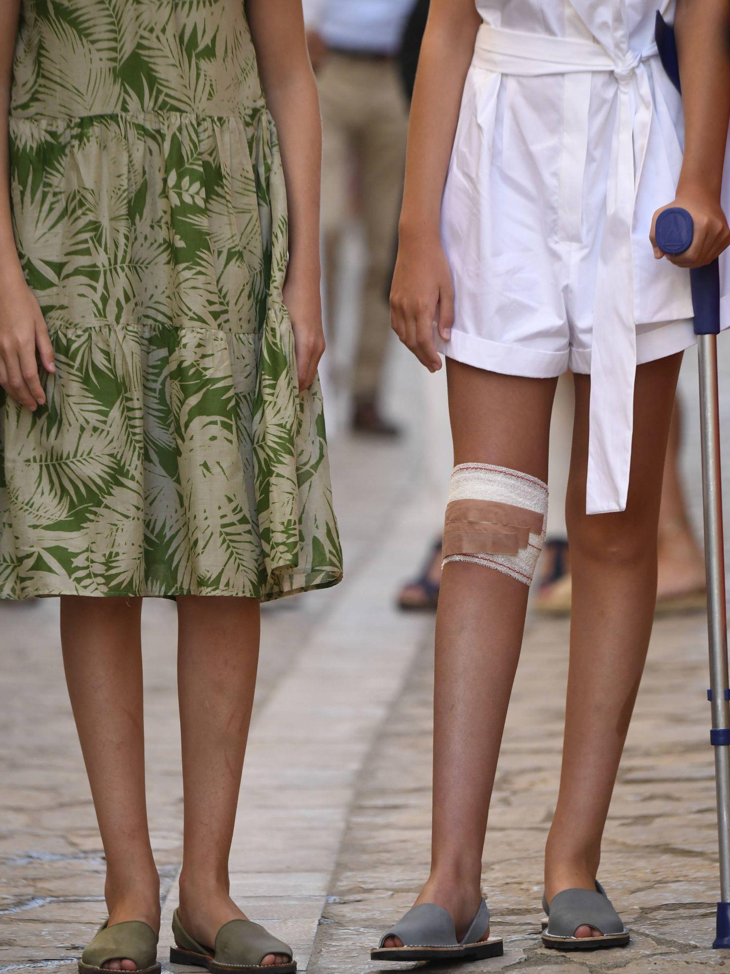 La infanta Sofía con muleta, este lunes en Petra, Mallorca. (Limited Pictures)