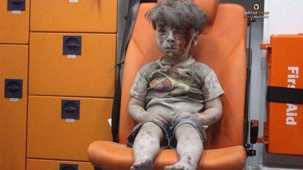 El superviviente de cinco años que ha puesto cara a los bombardeos en Siria