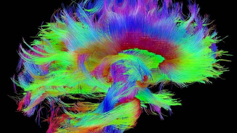 Sección de la arquitectura cerebral. (Human Connectome Project)