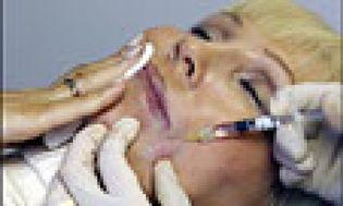 Foto: Vistabel y Botox, contra las arrugas