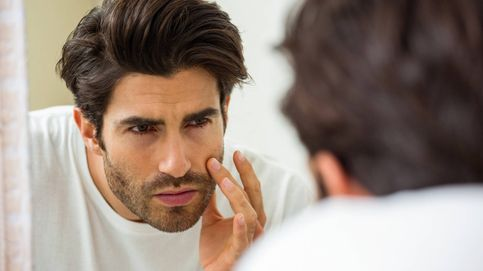 Los signos en tu cara que muestran que sufres una enfermedad