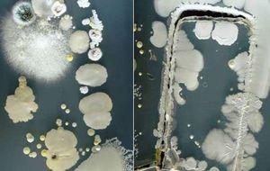 Estas son las bacterias que viven en tu móvil