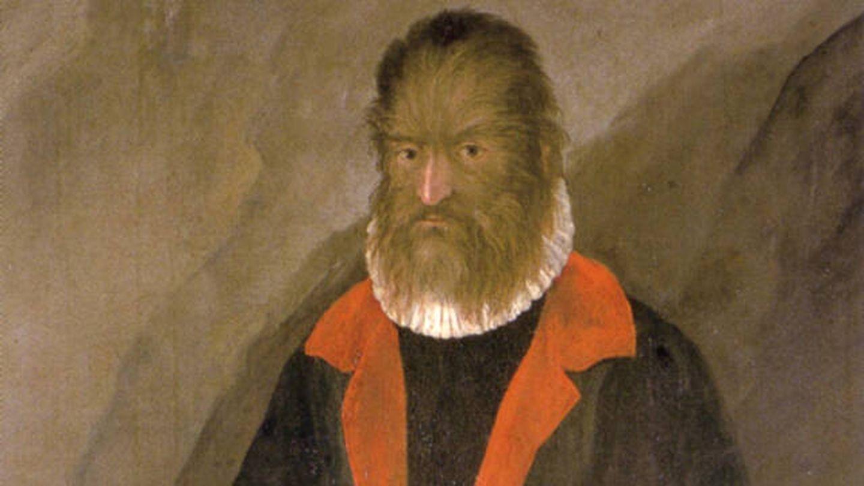 Retrato de Pedro González en el Castillo Ambras (Innsbruck, Austria).